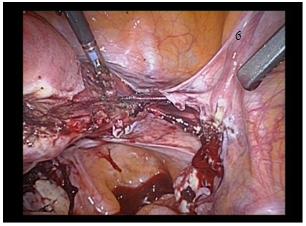 Que es histerectomia subtotal